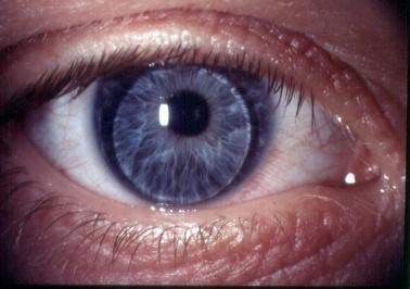 hell im Glanz der Verkauf von Schuhen heiß-verkaufender Fachmann Kontaktlinsen | Augenarztpraxis Freiburg