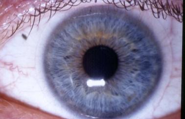 erste mal kontaktlinsen